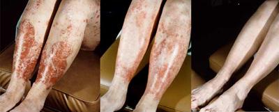 Psoriasis Examples