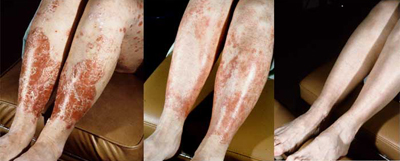 Psoriasis with Accompanying psoriatic Arthritis Examples