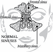 Normal Sinuses Effected by Sinusitis